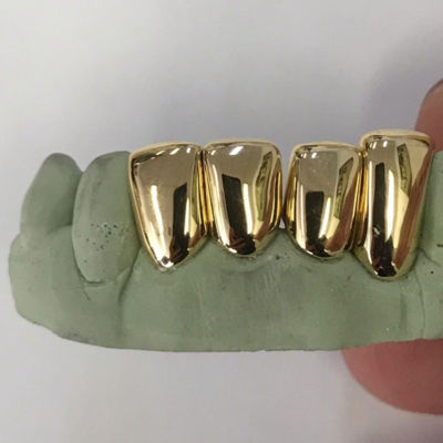 Can You Sell Your Gold Teeth?